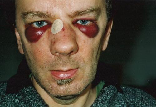 gewond1997a.jpg